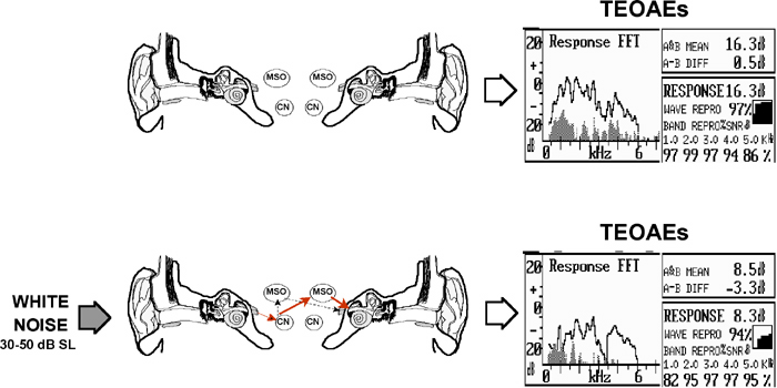 suppression of otoacoustic emissions and the efferent